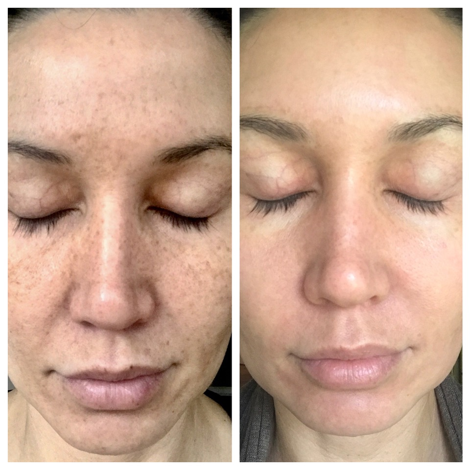 225 Sponsored Content 5 Ways Lasers Can Be Used To Improve The Skin